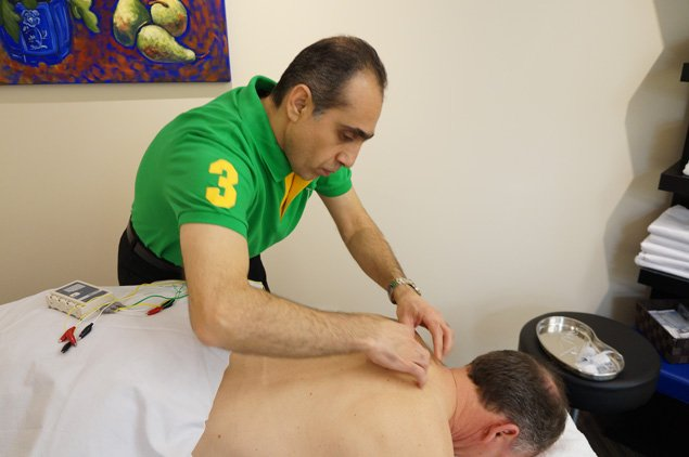 Acupuncture-in-Oakville-Dorval-Physiotherapy